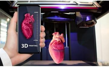 TOP 12 3D Printed Implants